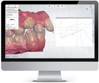 Orthodontic Planner